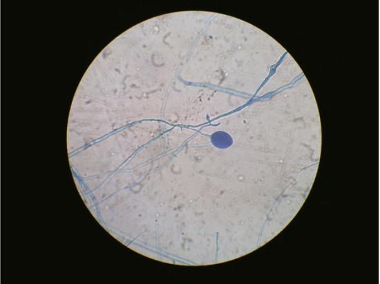 Cepa 9.1 86.5 de Phytophthora cinnamomi aislada a partir de raíces de árboles exhibiendo síntomas de marchitamiento en cultivos de aguacate en Montes de María. Foto: K. Salazar P.